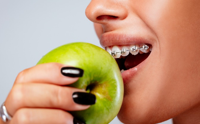 Should You Clean Your Teeth Before Getting Braces?