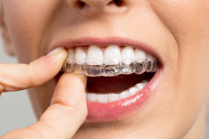 How Invisalign Is Changing Smiles One Smile At a Time