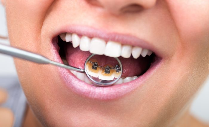 6 reasons to consider lingual braces