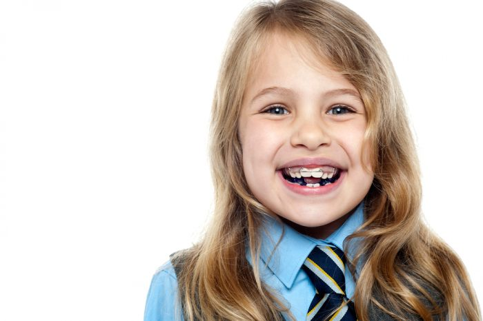 Do Crooked Baby Teeth Cause a Problem Later in Childhood?