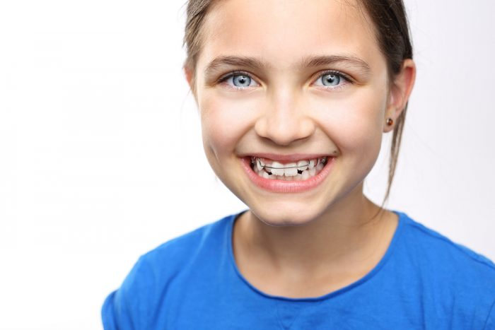 The Most Common Causes of Yellow Teeth in Children